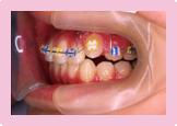歯を抜かない症例 STEP5