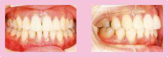 歯を抜いた症例 STEP3