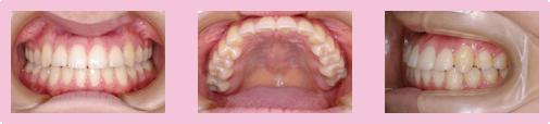 歯を抜かない症例 STEP7