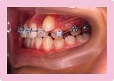 歯を抜かない症例 STEP4