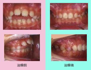 開咬の治療 子供の症例