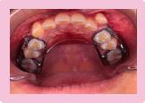 歯を抜かない症例 STEP2