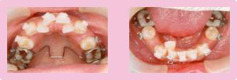 歯を抜いた症例 STEP2