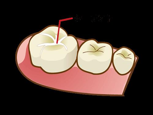 シールをして虫歯を予防する「シーラント」