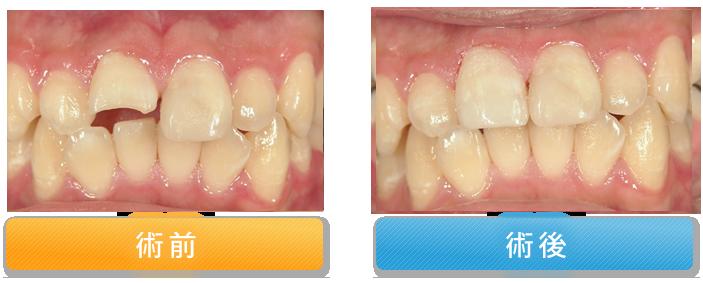 欠けた歯の修復