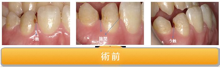 両隣接面にう蝕があり、隣在歯との間に隙間がある症例 術前