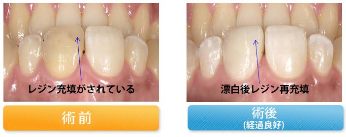 変色歯を漂白とレジン充填で修復した症例