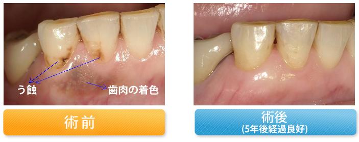 う蝕と歯肉の変色を修復した症例