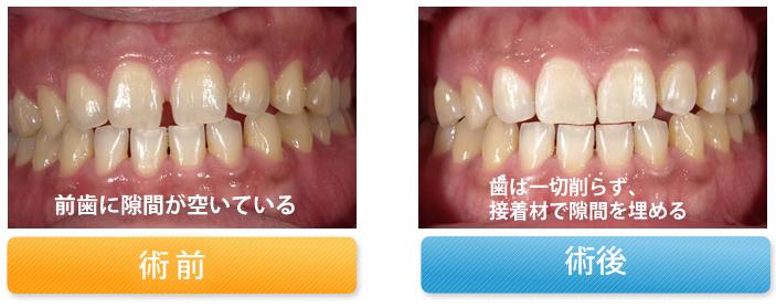 前歯の隙間を修復した症例
