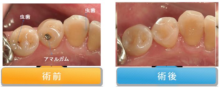 虫歯を白く修復