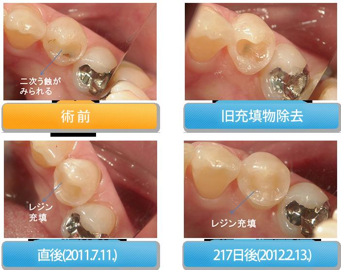 小臼歯の直接レジン充填