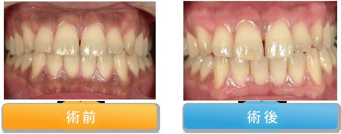 歯肉の漂白症例②