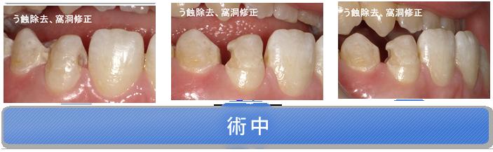 両隣接面にう蝕があり、隣在歯との間に隙間がある症例 術中
