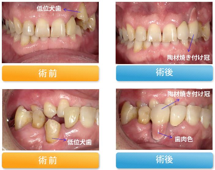 低位の犬歯を歯を抜かずに陶材焼き付け冠で治療した症例