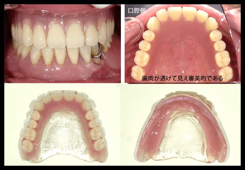 ハッピーデンチャーの症例 歯肉が透けて見え審美的である