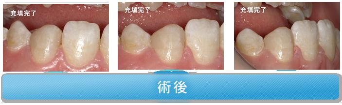 両隣接面にう蝕があり、隣在歯との間に隙間がある症例 術後