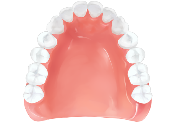 レジン床義歯 – 保険適応 -