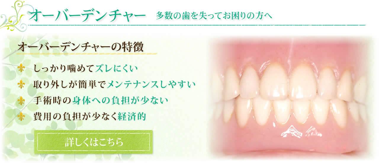 オーバーデンチャー 多数の歯を失ってお困りの方へ オーバーデンチャーの特徴 1.しっかり噛めてズレにくい 2.取り外しが簡単でメンテナンスしやすい 3.手術時の身体への負担が少ない 4.費用の負担が少