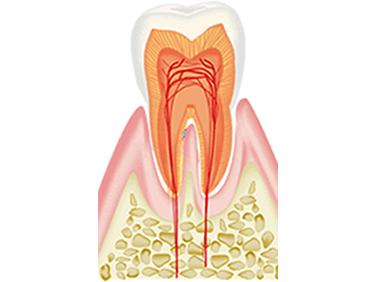 歯髄(神経)を残す重要性