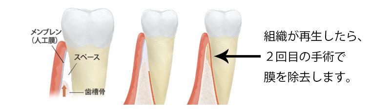 組織が再生したら、2回目の手術で膜を除去します