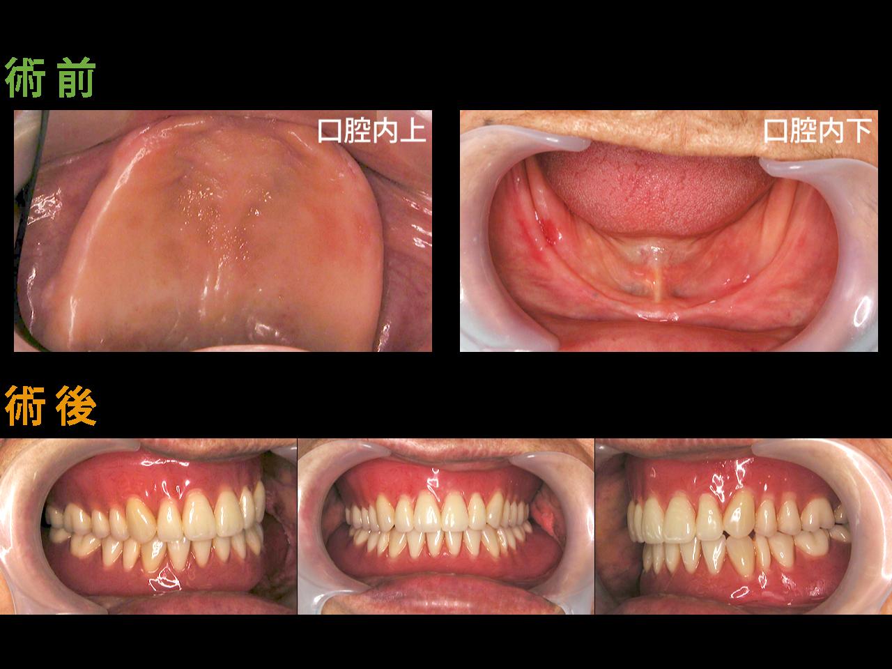 義歯の症例01