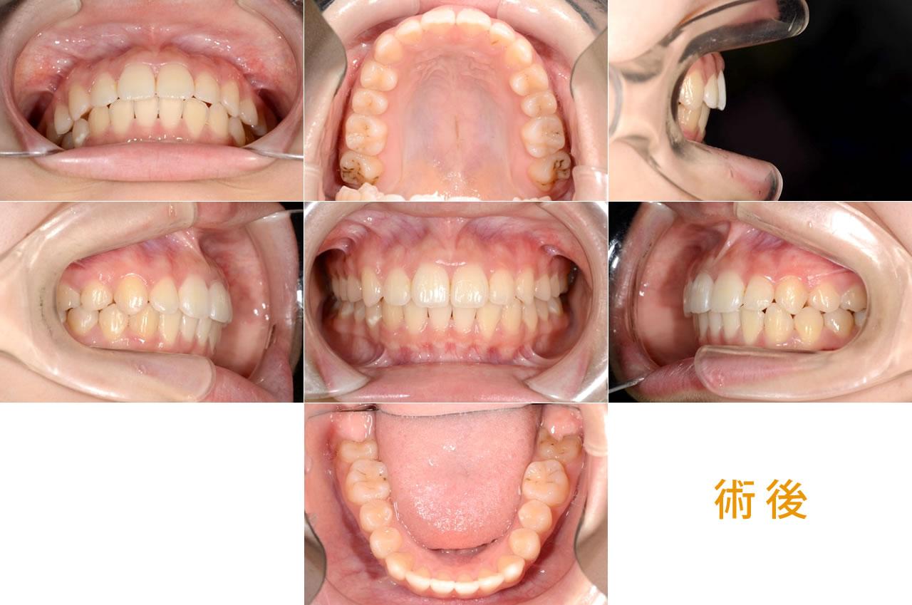 成人矯正の症例 CASE7 正中左側に偏位 術後