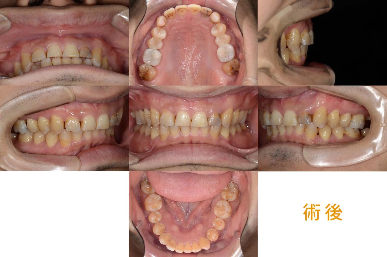 成人矯正の症例 CASE8 過蓋咬合 術後
