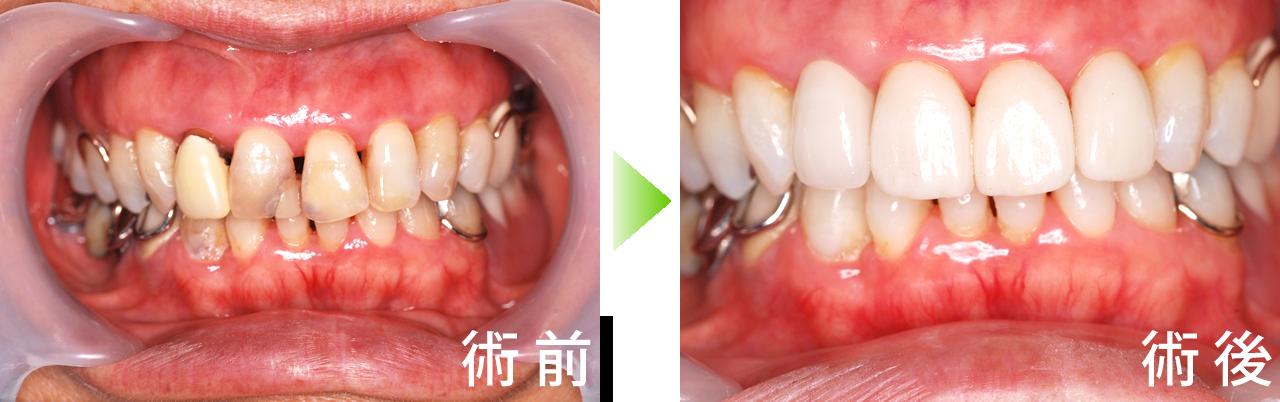 CASE2 全体の歯をホワイトニング後、前歯4本をオールセラミックにしました。