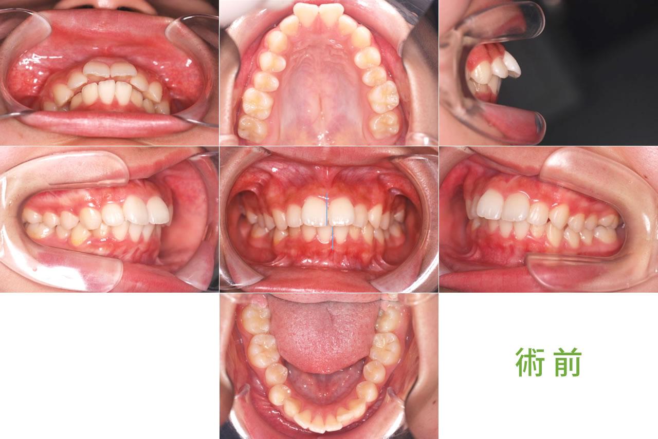 成人矯正の症例 CASE7 正中左側に偏位 術前
