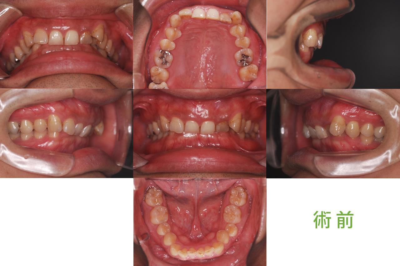 成人矯正の症例 CASE8 過蓋咬合 術前