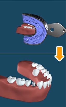 4.新しい歯の製作と装着