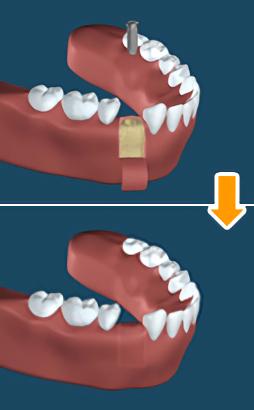 2.一次手術(インプラントを埋入する)