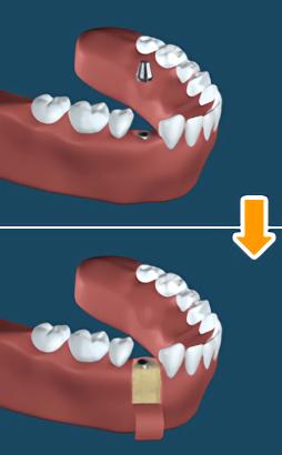 3.二次手術(新しい歯を装着する準備の手術)