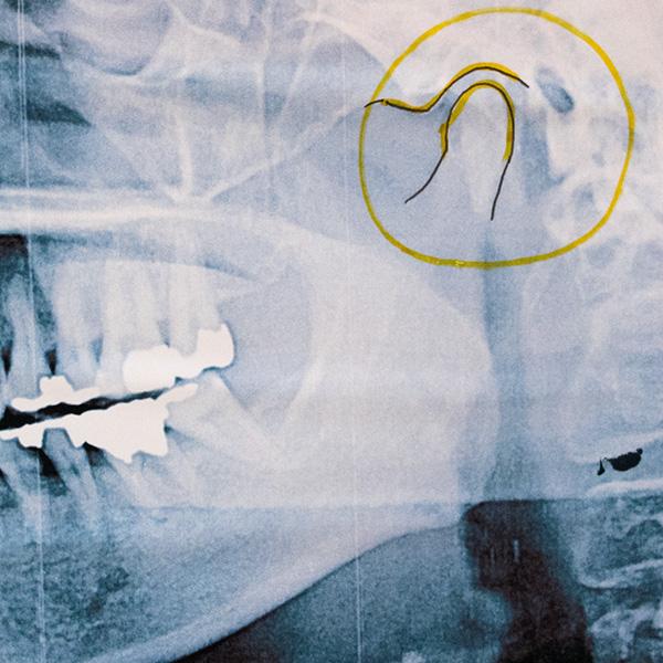 正常な顎関節