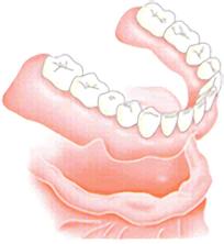 従来の治療法 (総入れ歯)