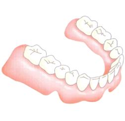 入れ歯安定剤・入れ歯の作り直し