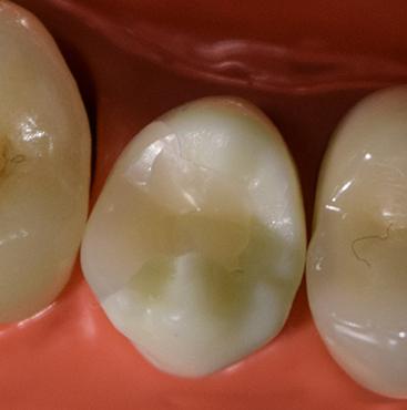 硬質レジン(小臼歯)