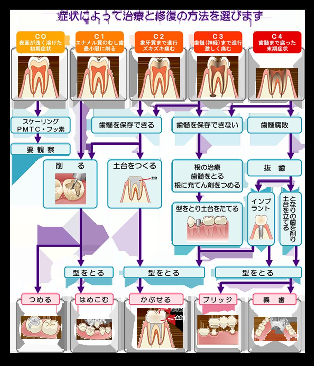 むし歯治療ガイド