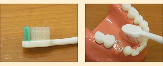 歯の裏側の磨き方①
