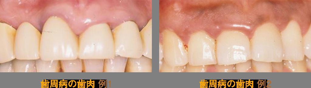 歯周病の歯肉とは