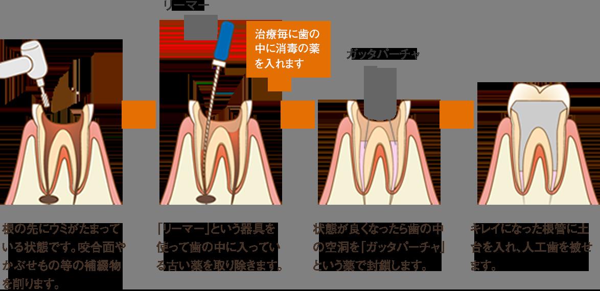 歯科 リーマー